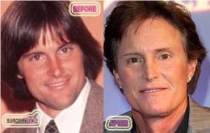 Bruce-Jenner-Worst-Plastic-Surgery
