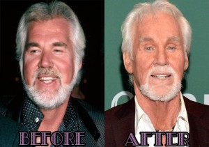 Kenny-Rogers-Plastic-Surgery-Before-and-After